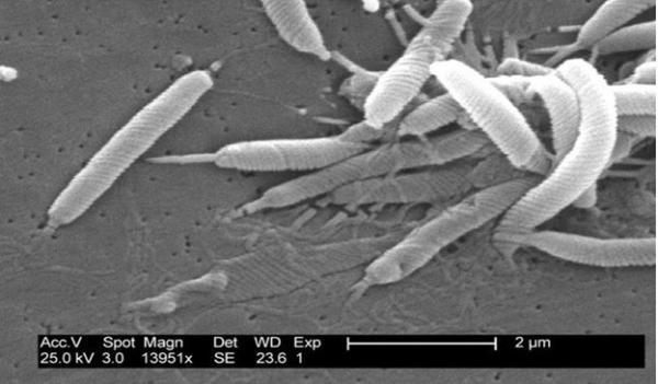 HelicobacterPylori_03.jpg
